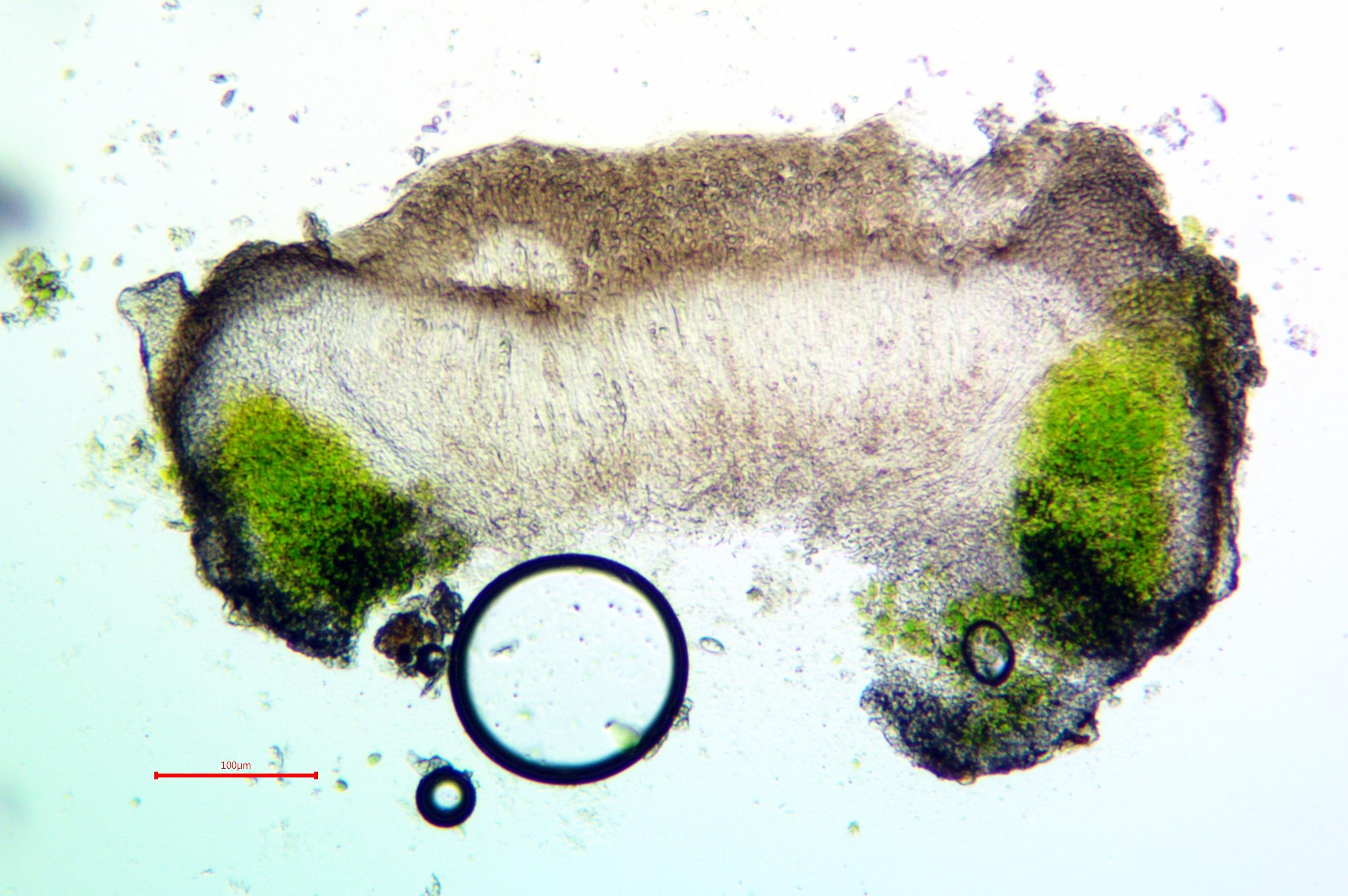 Caloplaca albovariegata image
