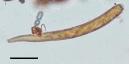 Hymenoscyphus calyculus image