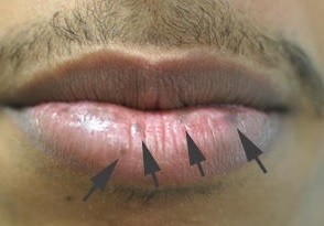 black spot on lip