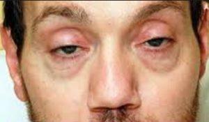 symptoms of batulism