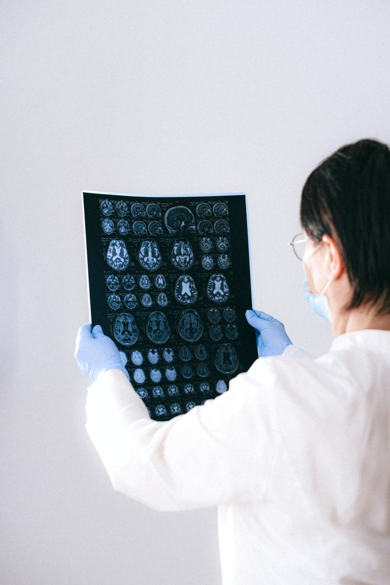 Tomografía Alzheimer