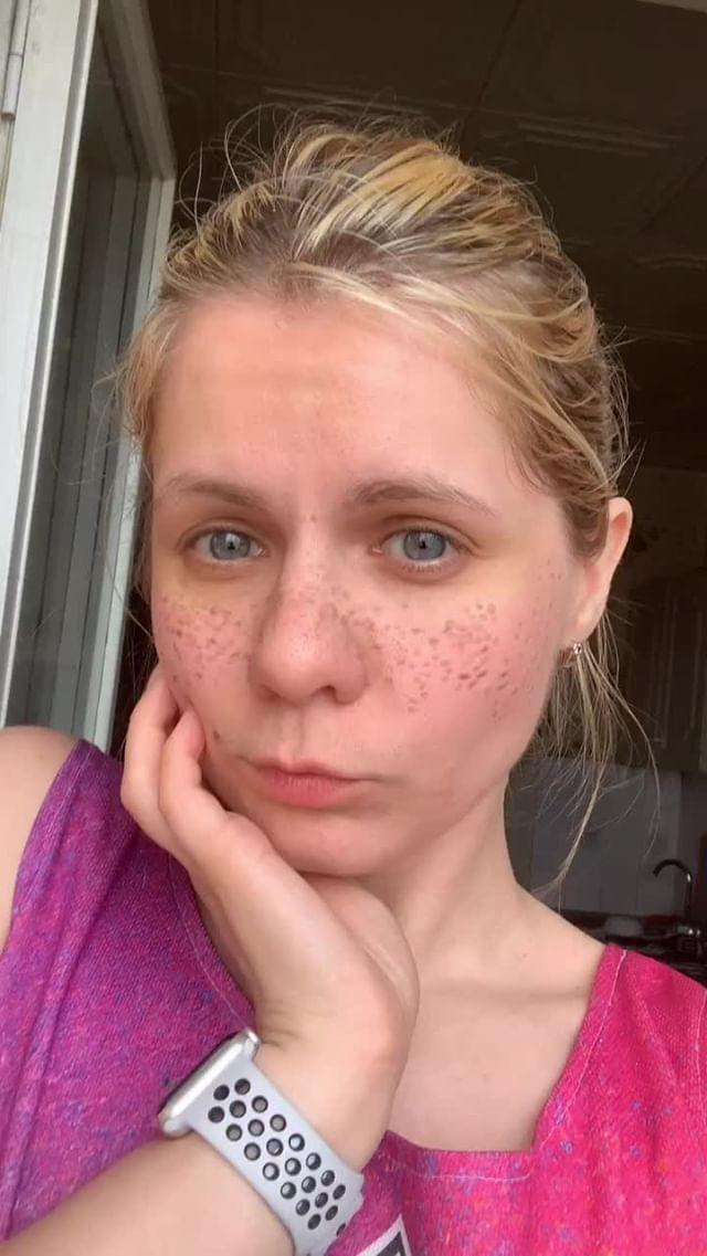 Instagram filter Cute freckles