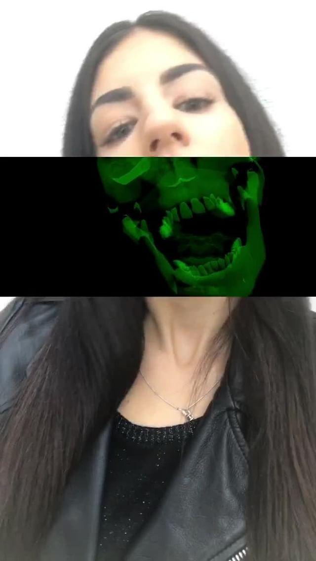Instagram filter Skeleton X-Ray