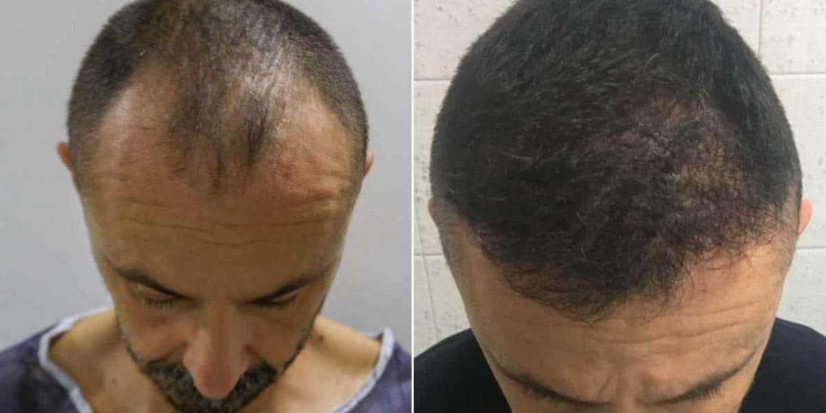 5 Tips to Keep in Mind While Hair Transplant