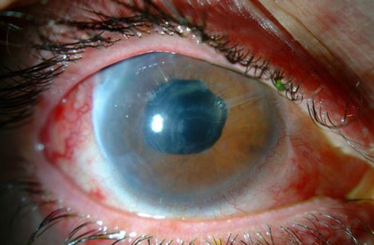 Glaucoma es la principal causa de ceguera en el mundo, IMSS