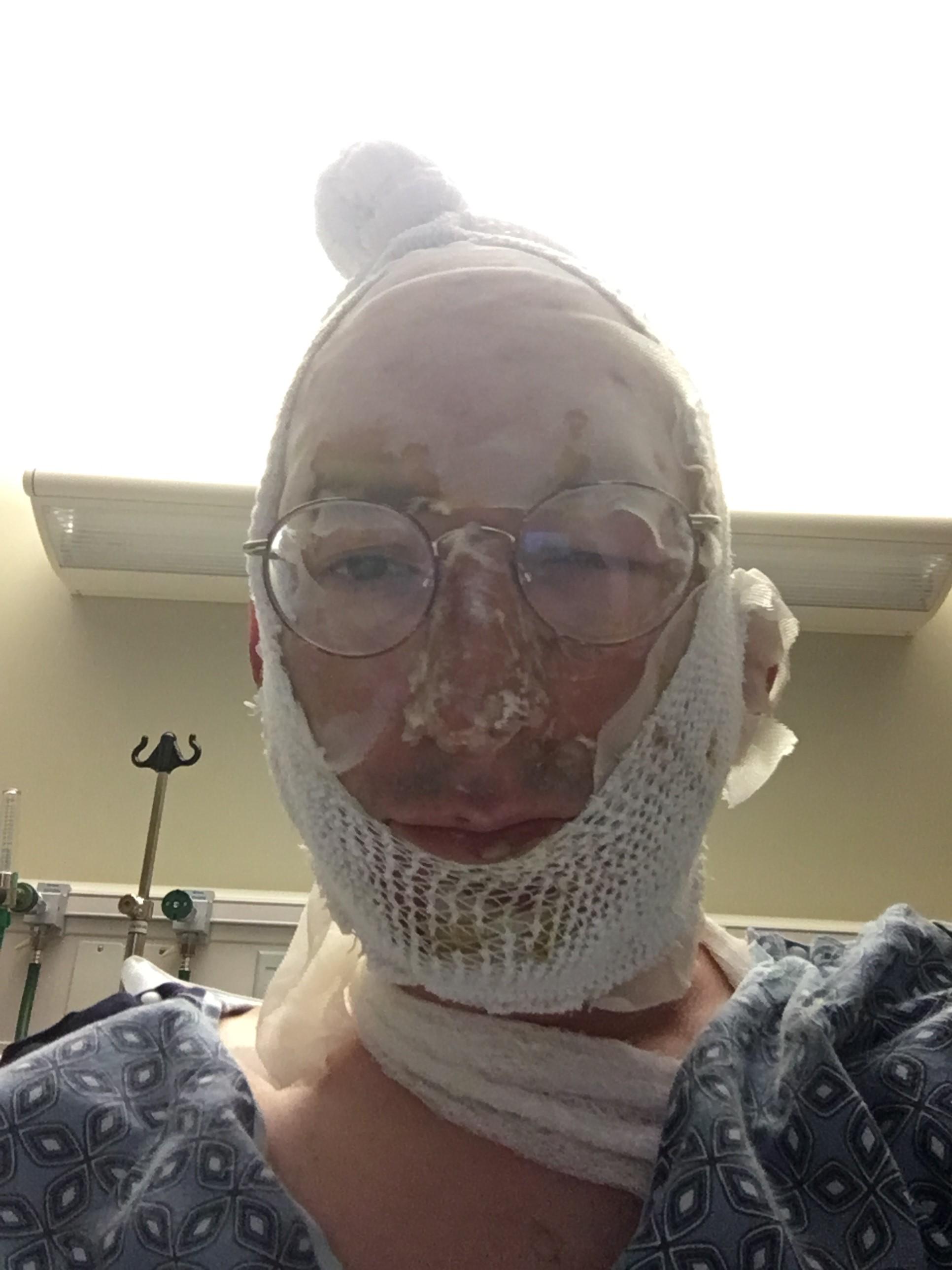 Dan Reichart No Shave November 2017