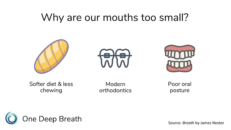 The size of our mouths and jaws are smaller and our teeth are crooked because of a shift towards softer foods, as well as orthodontic devices that constrain the mouth.