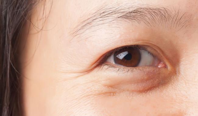 kem dưỡng da mắt trị vết chân chim