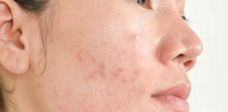 Nên chọn cách trị mụn viêm an toàn và hiệu quả cho làn da. (Ảnh: cnnturk.com)