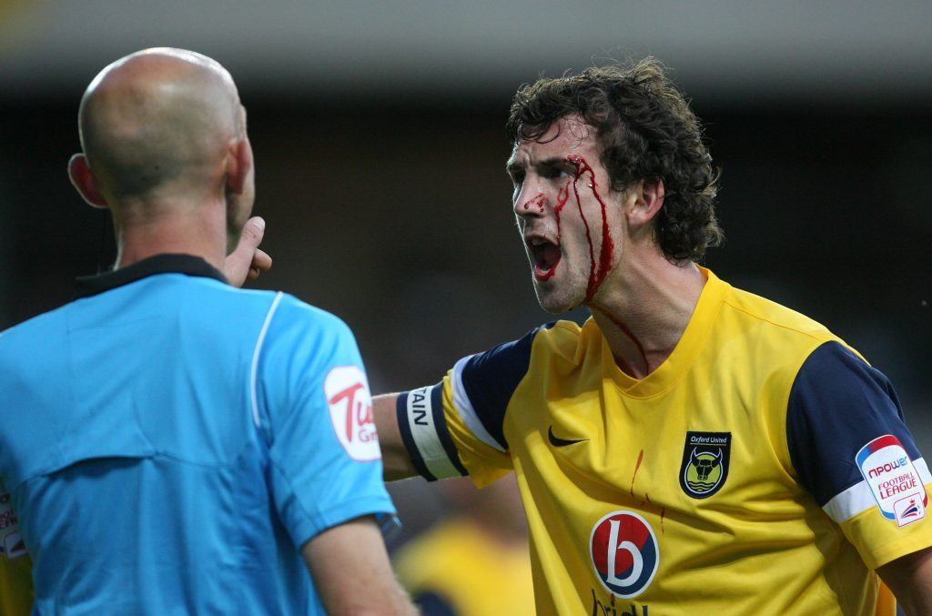 Jake Wright of Oxford United with blood running down his face shouts at the referee