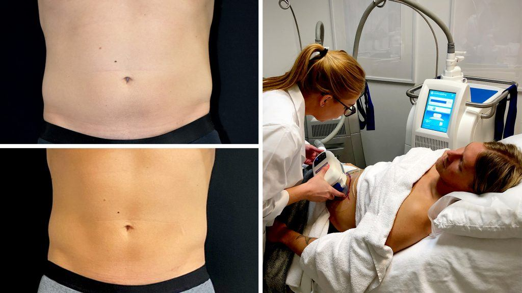 Café testar Coolsculpting