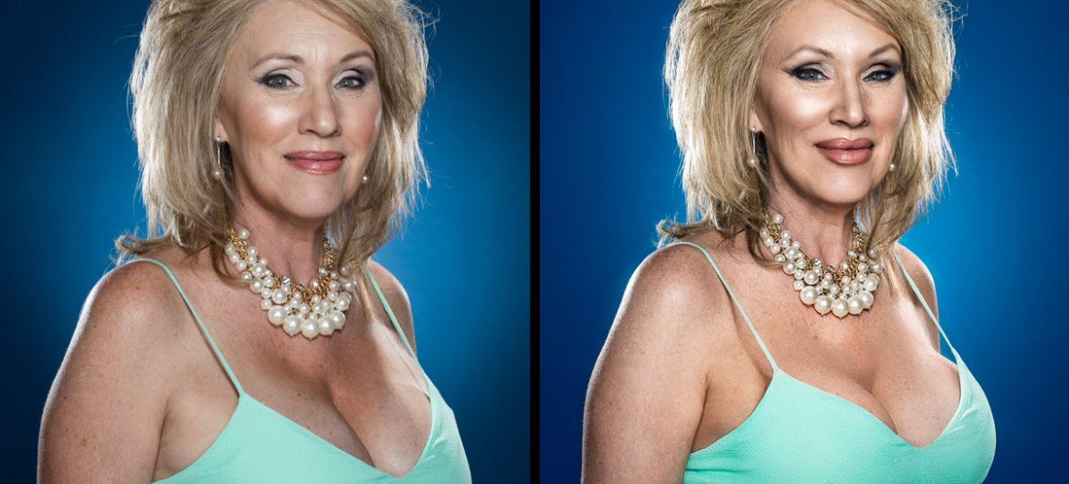 """Plastic Surgery"" photo retouching campaign on Orms Connect Photographic Blog"