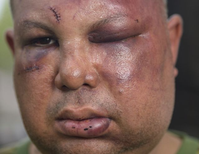 2nd New Orleans cop takes plea deal in Hispanic beating