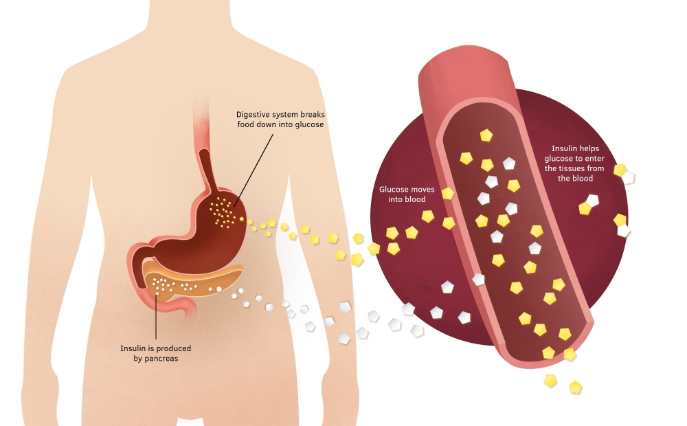 Diagram of the digestive system showing insulin produced by the pancreas acts to help glucose from food enter the tissues of the body.