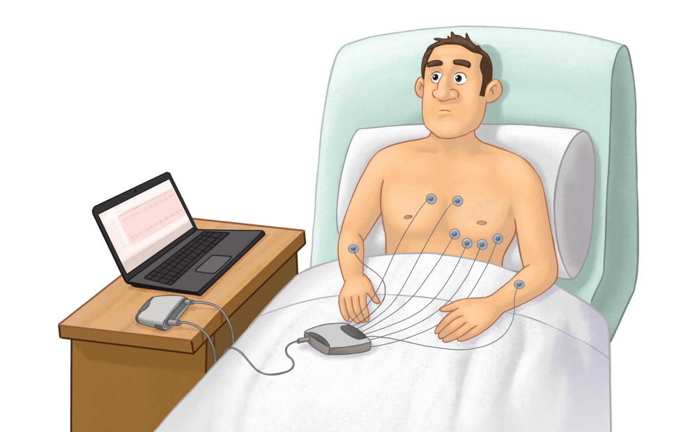 A person with electrodes on their chest undergoing an electrocardiogram.