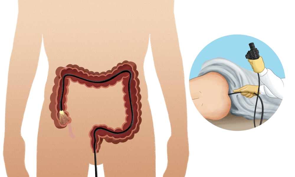 Colonoscopy may be used to investigate the cause of bleeding that is further up the gastrointestinal tract.