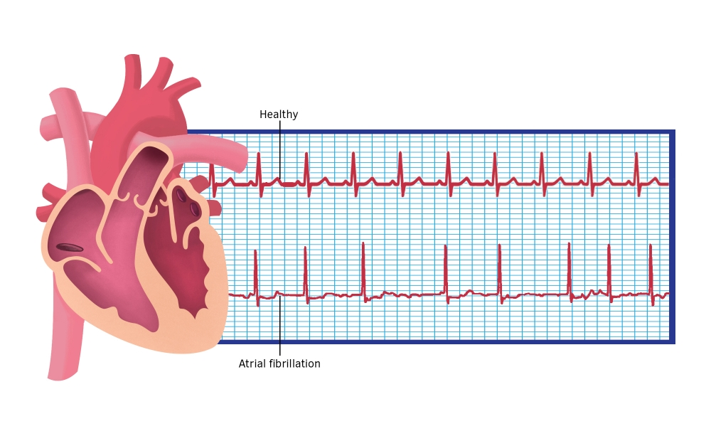Beats of a heart that is normal compared to one affected by atrial fibrillation.