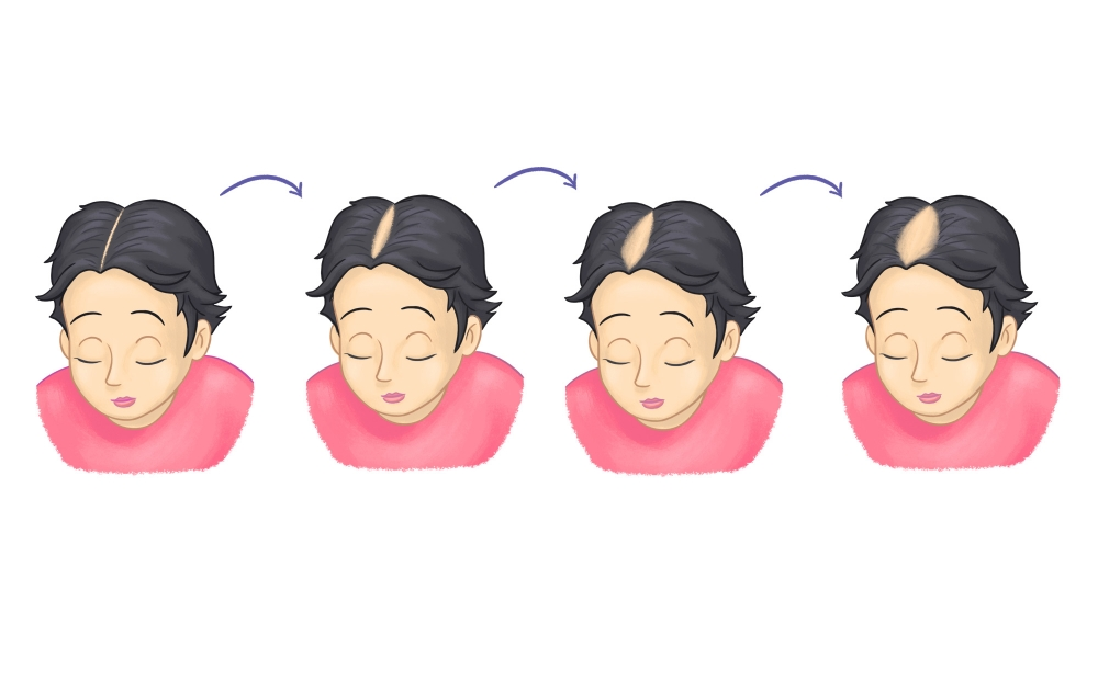 different patterns of hair loss, hair loss on female head, balding female head, causes of female hair loss.