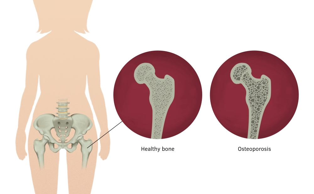 osteoporotic femur, healthy bone compared to bone with osteoporosis, effects of osteoporosis on bone.