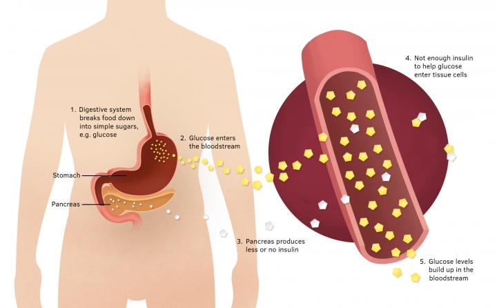 Diagram of the digestive system showing how a reduced amount of insulin produced by the pancreas prevents glucose from food enter the tissues of the body.