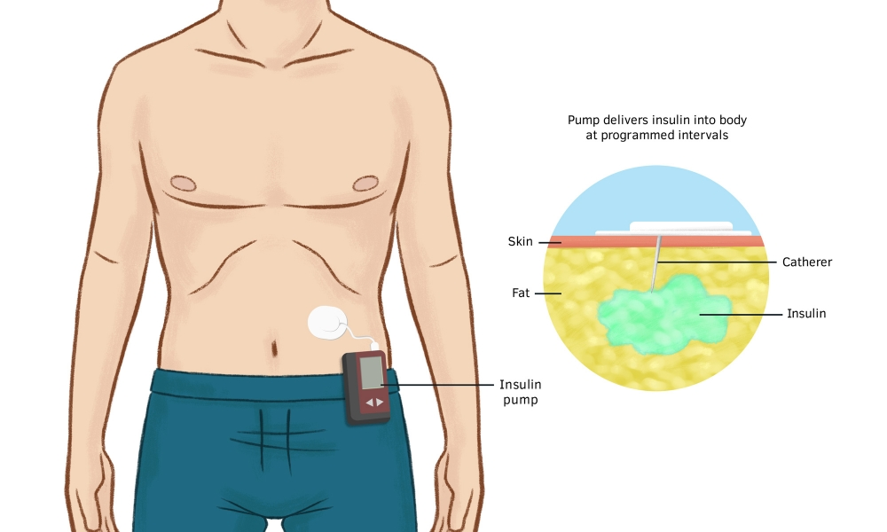 A diagram showing an insulin pump worn on the back at the hip and how insulin is delivered by a catheter into the skin.