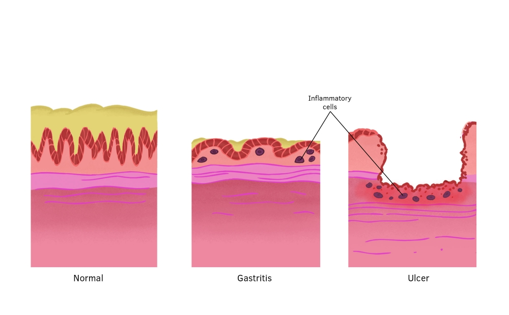 Biology of gastritis, stomach lining and gastritis, changes to stomach lining, formation of stomach ulcers.