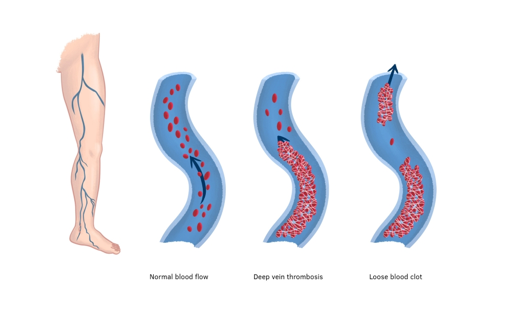 Leg veins showing normal blood flow, the formation of a deep vein thrombosis and a blood clot that has become loose.
