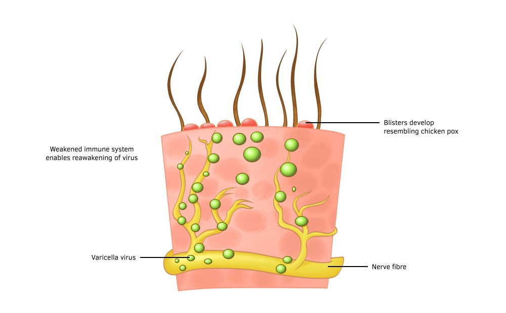 Varicella zoster virus travels along the nerve fibre to the skin surface. A weakened immune system enables the virus to activate and cause shingles.