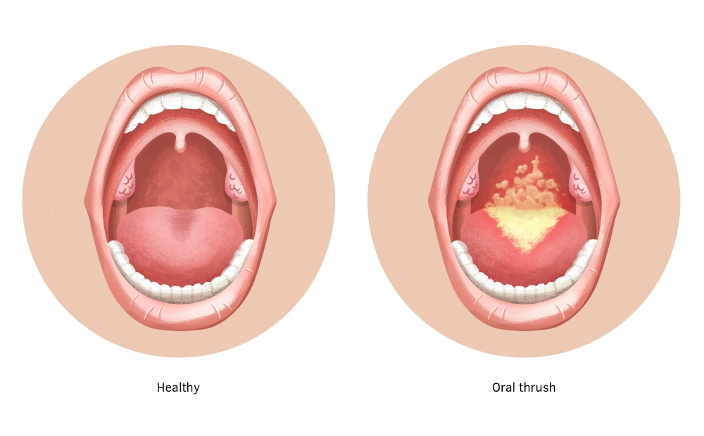Open mouth showing white patches on the tongue and back of the throat.