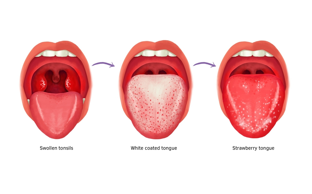 Strawberry tongue, red and swollen tongue, sore throat with red swollen tongue.