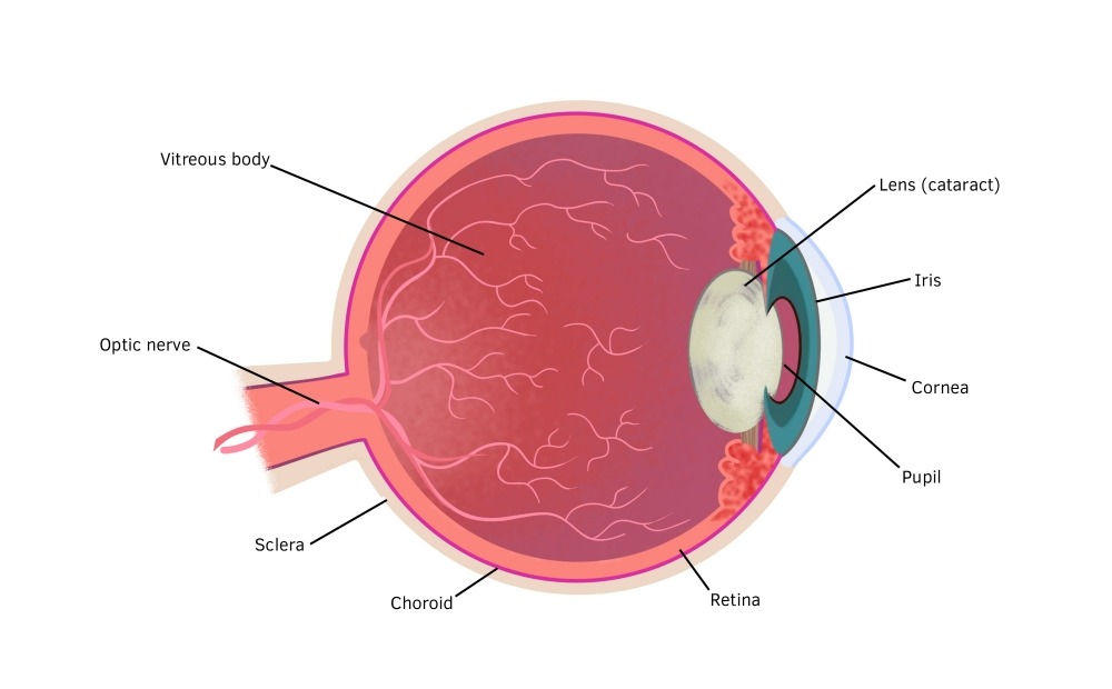 Cross-section of the eye showing the cloudy lens caused by cataract.