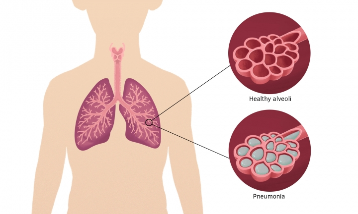 Lungs showing healthy alveoli and fluid-filled alveoli in pneumonia.