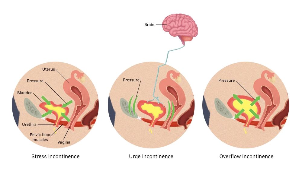 Stress, urge and overflow incontinence in women.