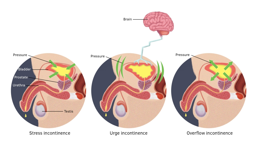 Stress, urge and overflow incontinence in men.