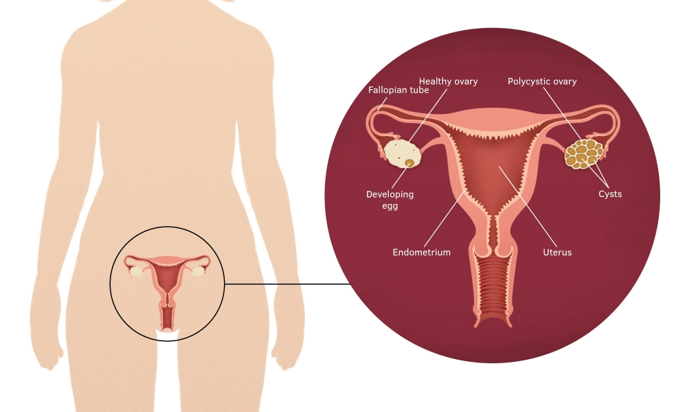 Female reproductive organs showing a polycystic ovary.