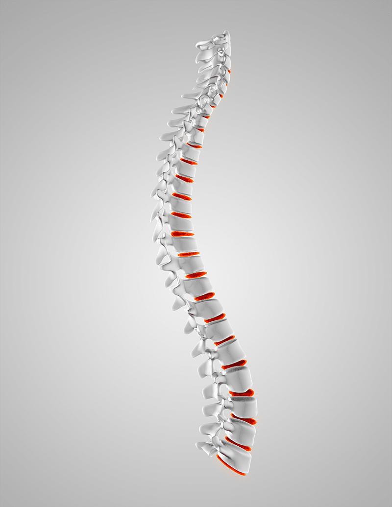 mal de dos hernie discale
