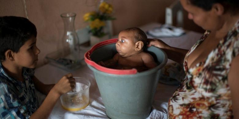 Solange Ferreira meletakkan bayinya yang menderita mikrosefali, Jose Wesley ke dalam ember di rumahnya di Brasil. Menurut Ferreira, Jose menikmati berada di dalam air.