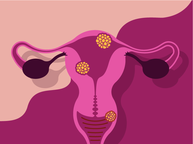 13014-Tips to Treat and Prevent Bacterial Vaginosis-732x549-Thumbnail13014-Tips to Treat and Prevent Bacterial Vaginosis-732x549-Thumbnail