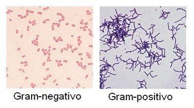 organismos_patogenos_6.jpg (394×220)
