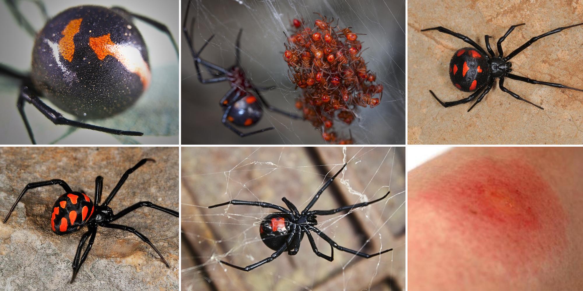 Mordeduras de la araña viuda negra