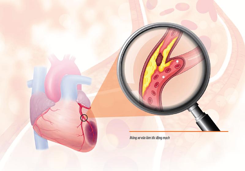 Phương pháp chẩn đoán bệnh mạch vành