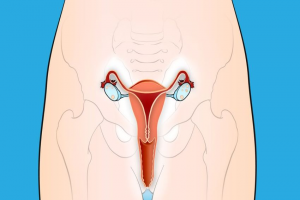 10 Early Warning Signs of Cervical Cancer That Women Always Ignore