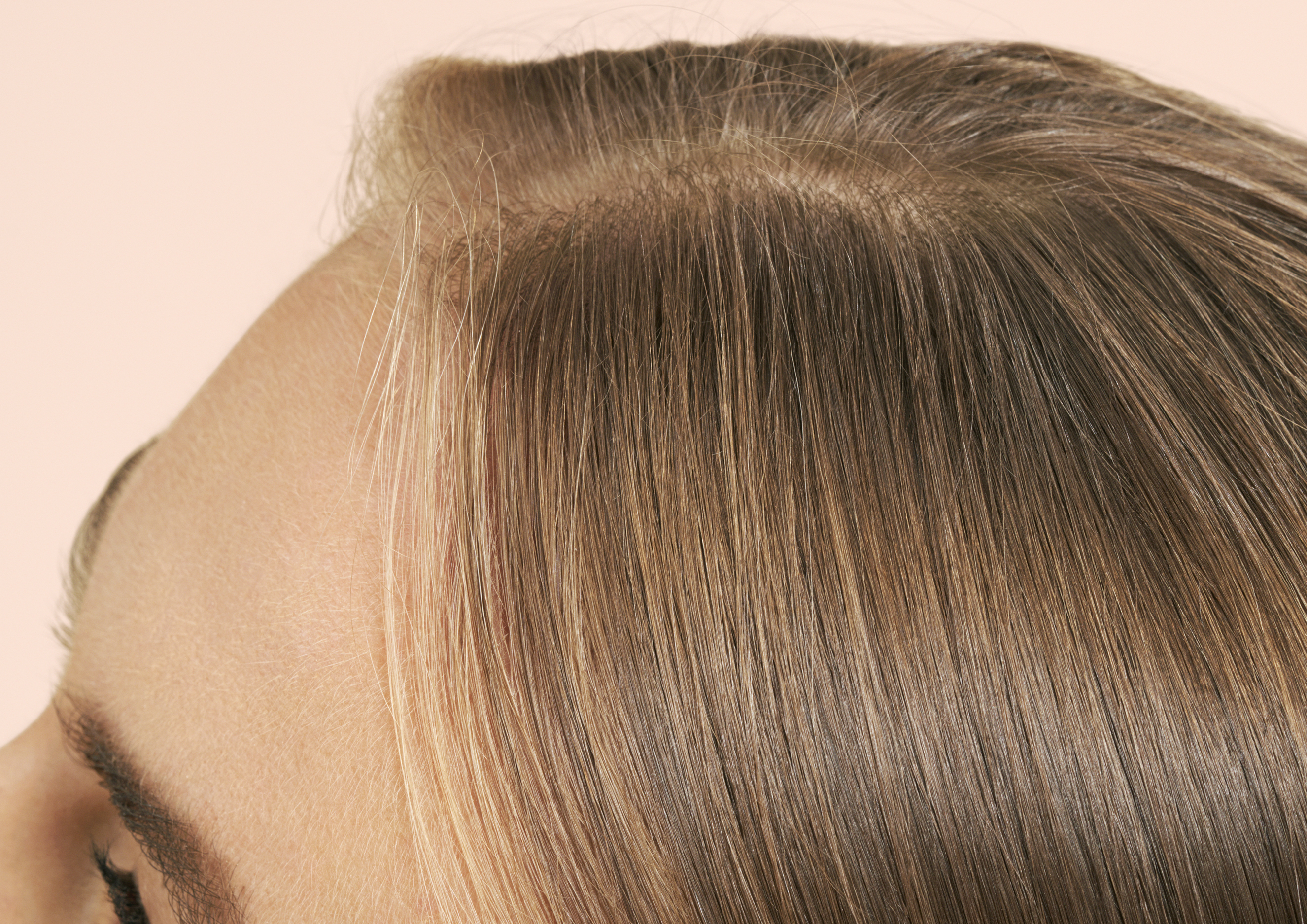 How To Help Combat Female Hair Loss P S By Prose Hair
