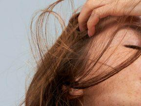 geo-aggressors-hair-loss