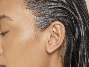hair-loss-men