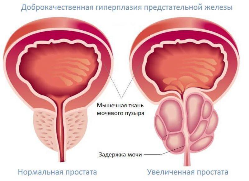 Аденома простаты. Симптомы. Методы лечения.