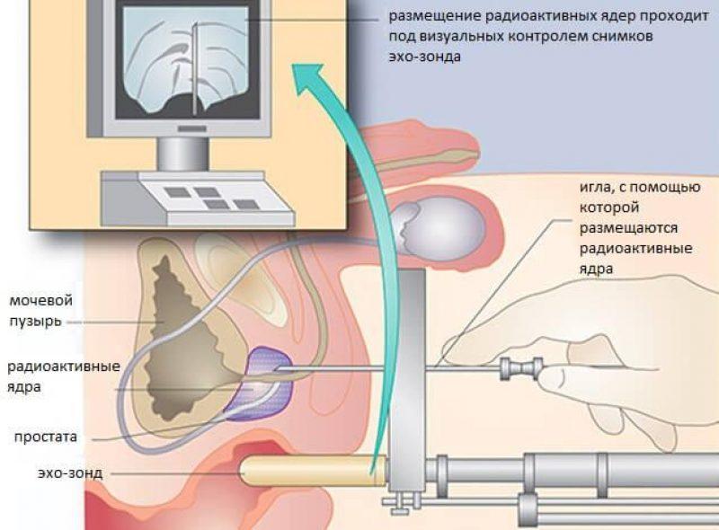 Брахитерапия Простаты 2