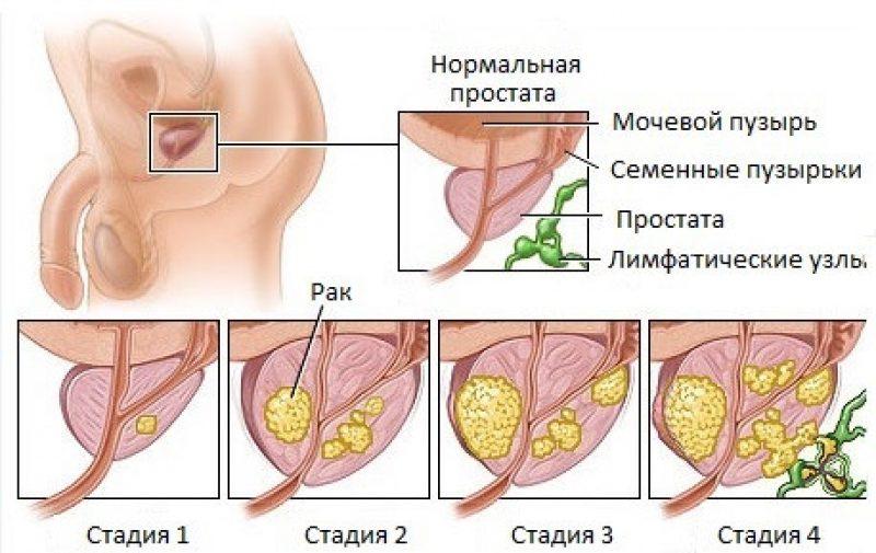 опухоль простаты у мужчин
