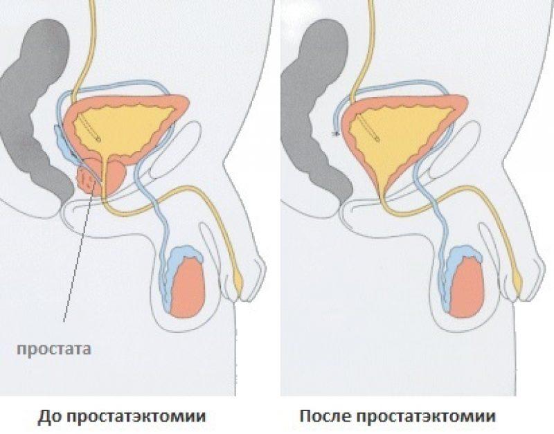 Последствия удаления аденома простаты операция