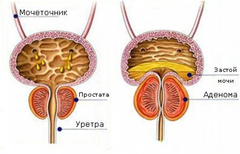 Чем аденома простаты отличается от простатита хроническим застойным простатитом